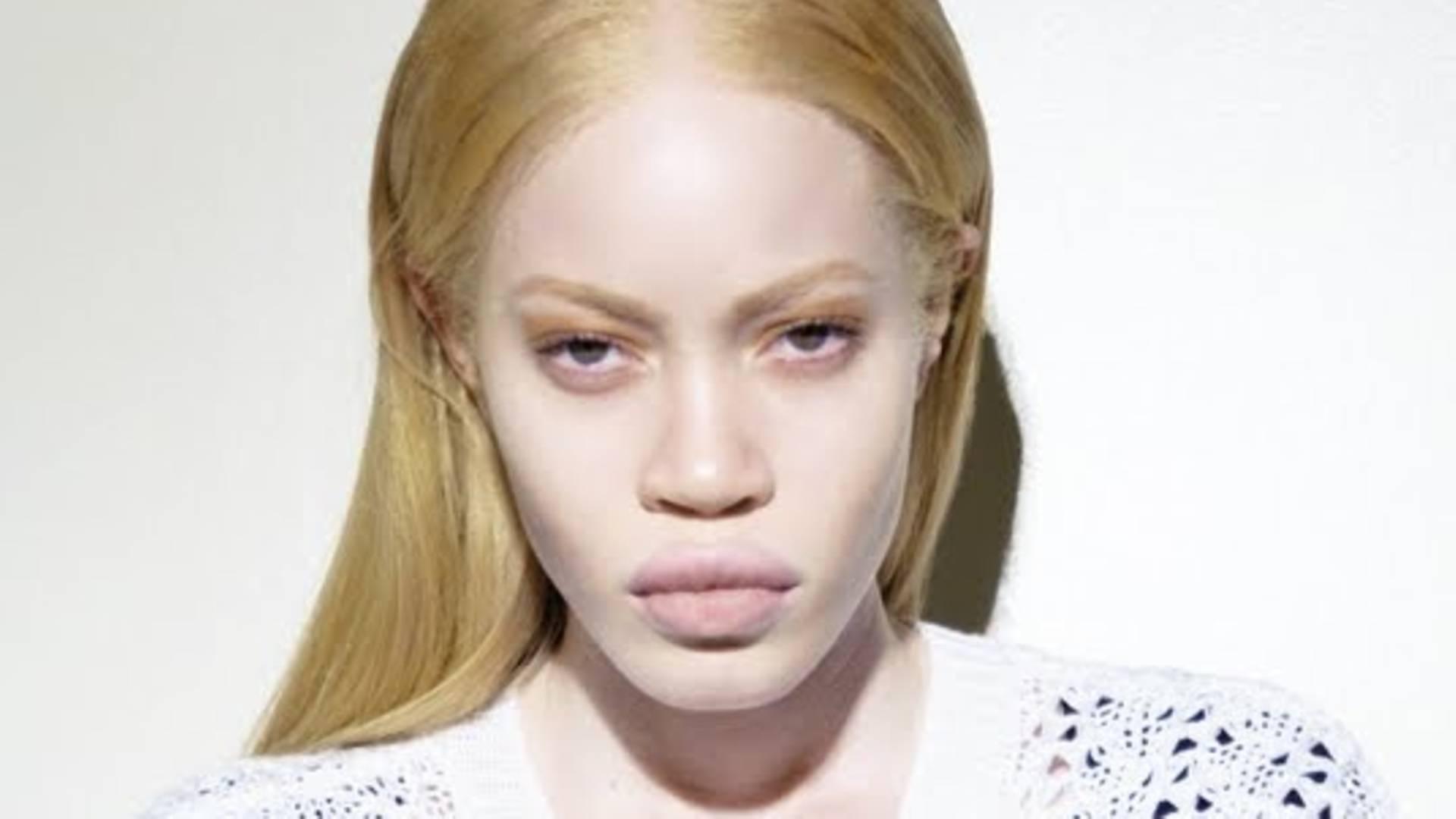 Albino model hairstyles