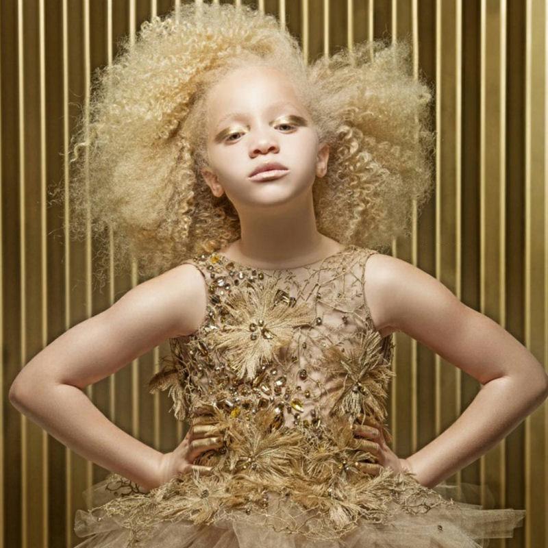 Ava Clarke albino natural afro