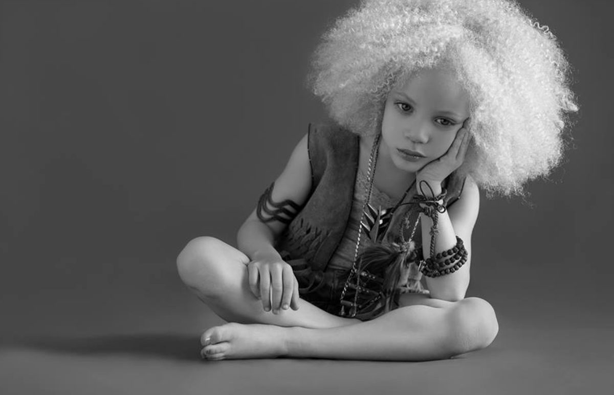 Albino Models Amp Black Women Hairstyles Hairstyles 2017