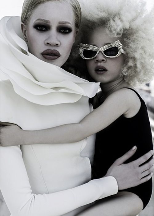 Diandra Forrest and Ava Edney albino hairstyles