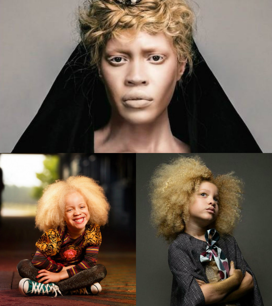 albino black women curly hairstyles