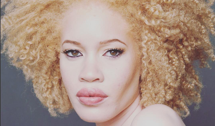 albino model with natural afro hairstyles